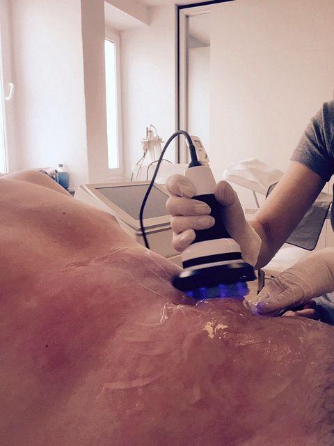 Kavitation / Virtual Liposuction / Lipoclasie